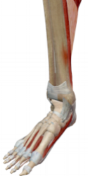 Fig.2 : Tibial stress   fracture