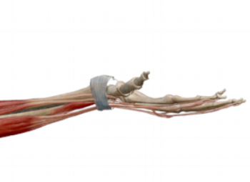 Fig.3: Wrist extension