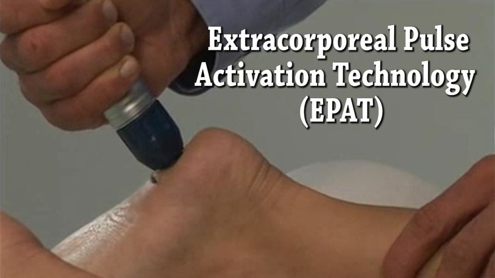 heel pain, achilles tendonitis, foot pain treatment with shockwave therapy