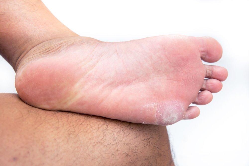 39809924_L_Corns_Feet_Toes_Bottom of the Feet.jpg