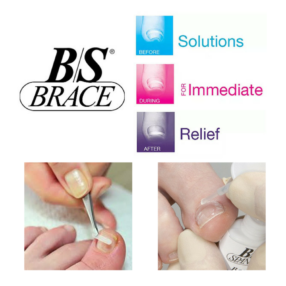 Are your toenails too sensitive and painful to touch?   - The B/S Brace System is a NON-Surgical, corrective procedure that will eliminate pain and help correct the curvature of the nail.