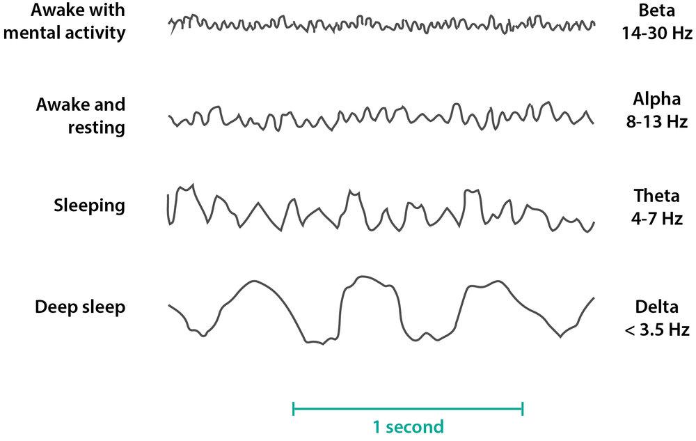 the wave the characteristics of an eeg firstclass