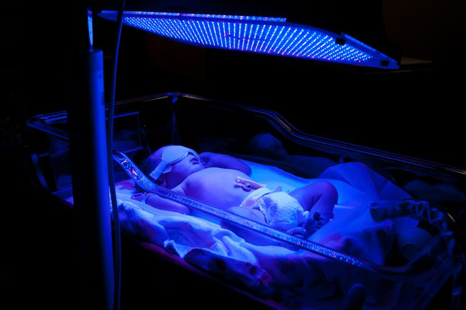 Baby undergoing Phototherapy