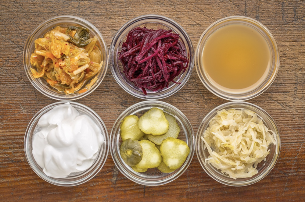 Ask the Expert: Should I Be Taking a Probiotics Supplement? -