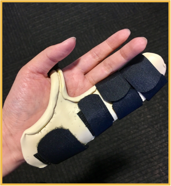 Custom hand based digital retainer splint to maintain extension gained from procedure.