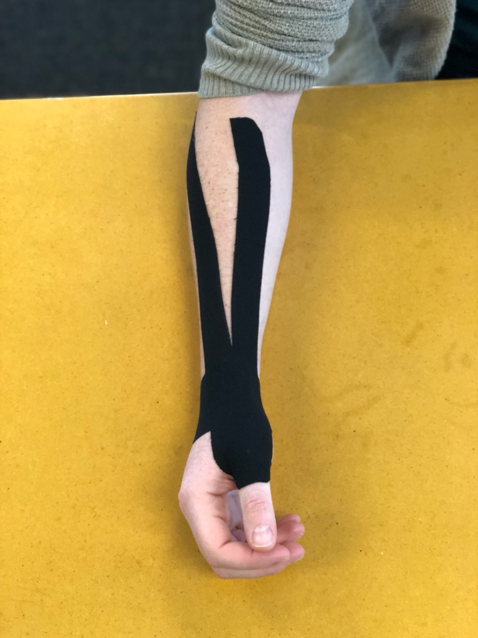 Figure 2 - De Quervain's decompression taping for pain and swelling.