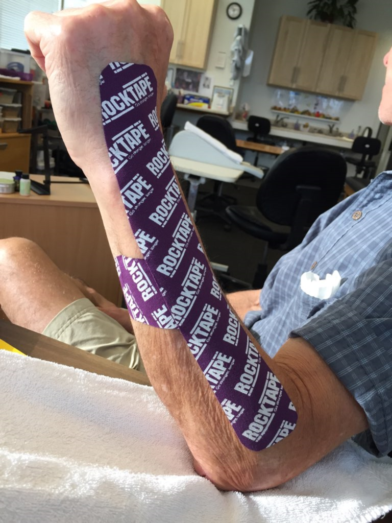 Figure 3.1 - Scar management taping for extensor tendon laceration.