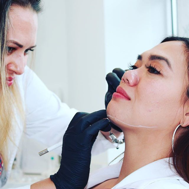 Chin fat reduction in action with our lovely nurse @rn_injector_mk 💉 This treatment involves the injection of deoxycholic acid which is a major fat burner. In the chin area, you can see results in as little as ONE treatment! Stay tuned for the after pics!