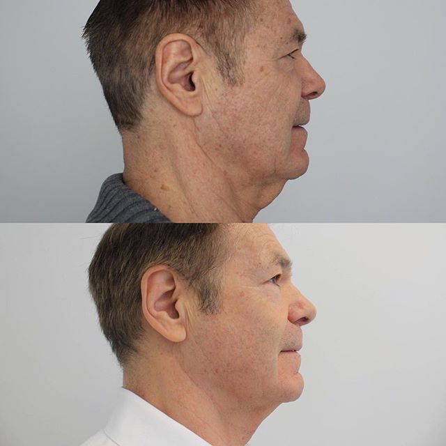 BEFORE AND AFTER Results of ONE infini treatment done on the face and neck. The skin is noticeably tighter and fine lines and wrinkles are softened. Infini is a resurfacing treatment that uses radio frequency to stimulate collagen production. In our mid-twenties we start to lose collagen making this treatment great for both young and mature skin!