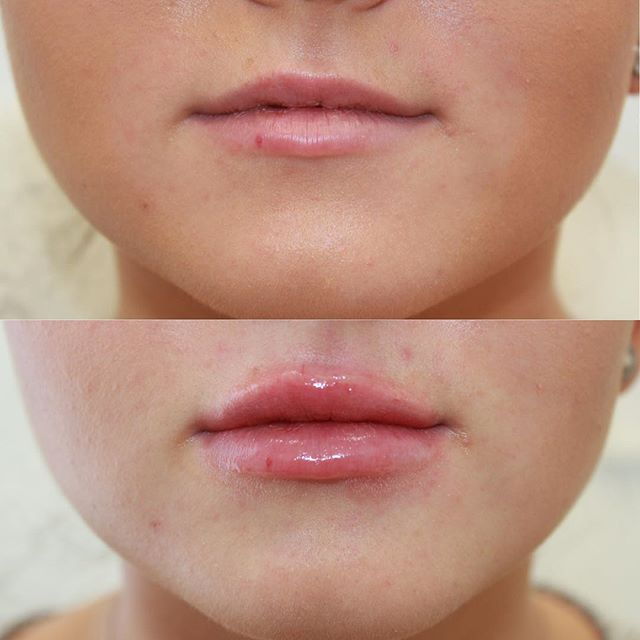 .5cc of @stylagecanada M used to achieve this juicy pout. Done by @rn_injector_mk 💉💋