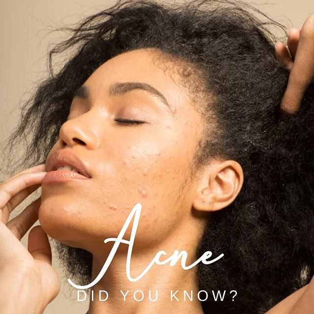 DID YOU KNOW? 🤔🤔 Acne affects 5.6 MILLIONS Canadians and 80 percent of acne sufferers are between the ages of 12-24 years. Does acne affect you? ⠀⠀⠀⠀⠀⠀⠀⠀⠀ ⭐️HOW DO I PREVENT ACNE?⭐️ 1. Drink lots of water 2. Use products that won't clog pores (non-comedogenic) 3. Limit unhealthy foods 4. Use facial cleansers that won't strip the skin of natural oils (look for sulphate-free formulas) 5. Use the right skincare routine for your skin type ⭐️HOW DO I TREAT ACNE?⭐️ 1. Look for products with ingredients such as salicylic acid, benzoyl peroxide, sulfur, glycolic acid and retinol. 2. Blue light therapy helps to kill acne causing bacteria.  3. Extractions are done to drain excess fluid buildup. 4. Laser acne treatments use intense pulse light to go deep into the skin and eliminate acne causing bacteria and prevent new breakouts.  5. Kenalog injections will rapidly reduce the appearance of pimples and are recommended for short term treatment.