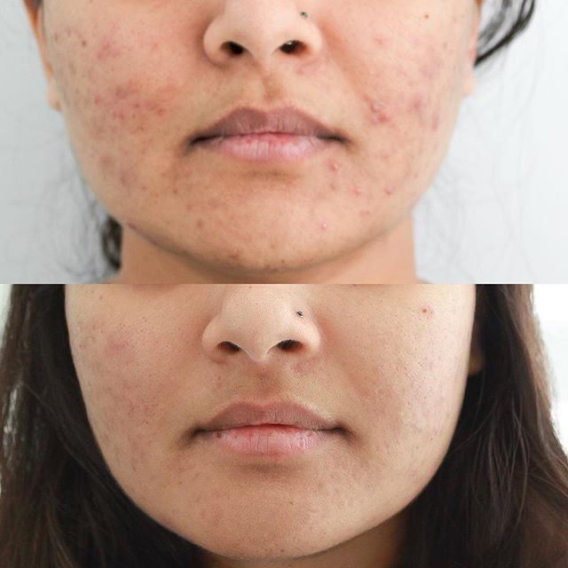6 treatments of our customized #laseracne she also consistently uses our recommend products which include #prohealth from @isclinical  What have you tried to clear your #acne let us know!