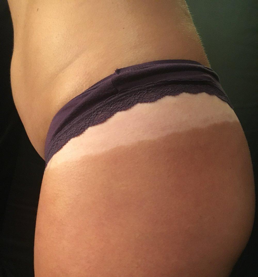 spray tan lines