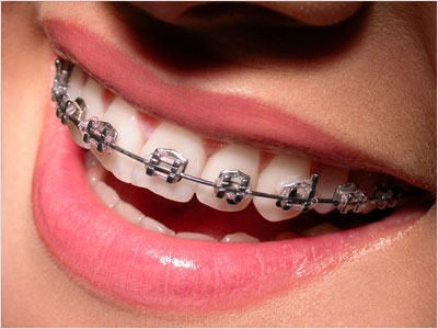whatever orthodontic treatment is best for your individual case your braces will straighten your teeth help you bite and chew correctly improve your