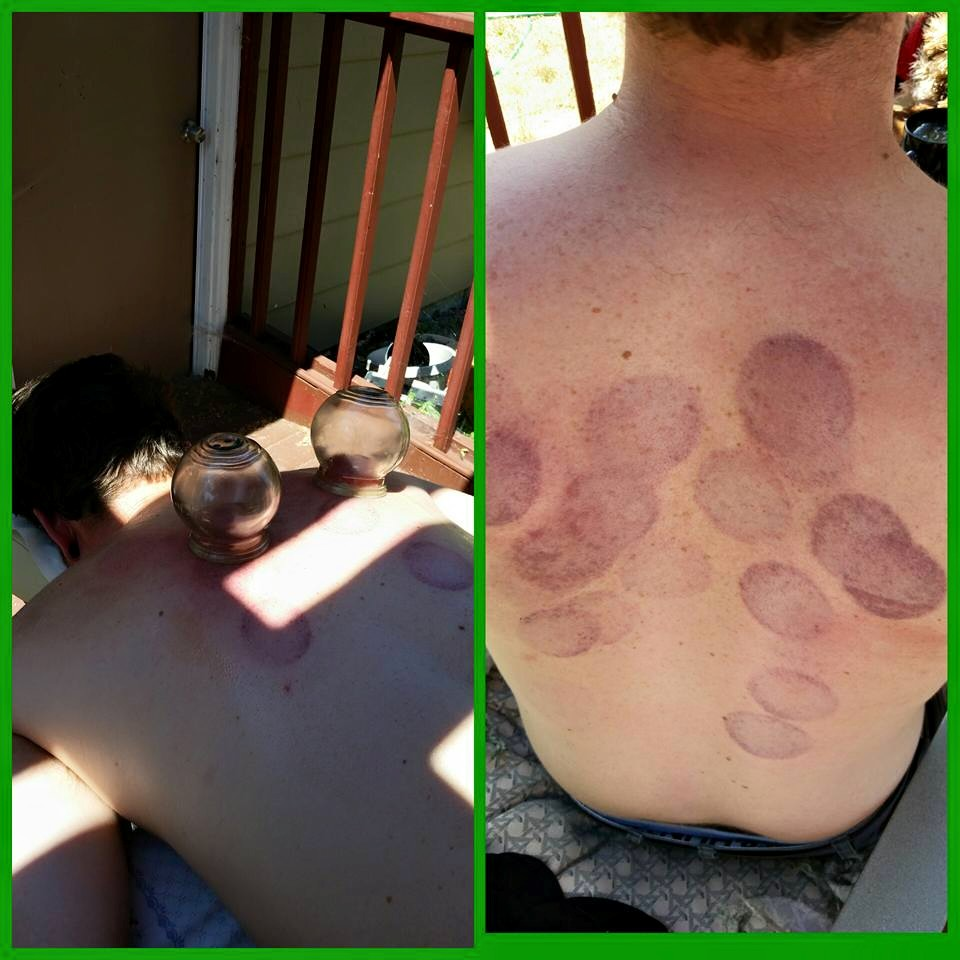 wildflower acupuncture cupping.jpg