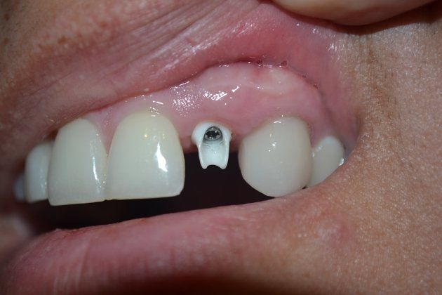 Custom abutment attached to the healed implant