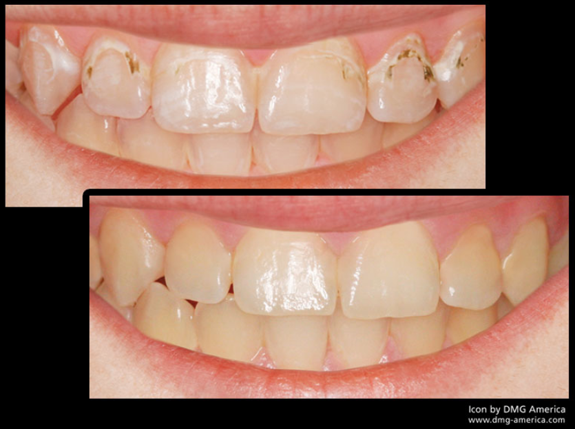 cavity-resin-infiltration-icon-no-drill-fillings-san-francisco-bay-area-mina-levi-dds