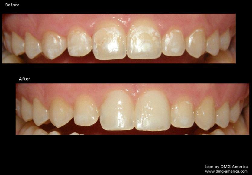 resin-infiltration-no-drilling-cavity-filling-dentist-san-francisco-preventative-mina-levi-dds.png