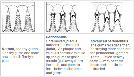 Periodontal-disease-preventative-dentistry-no-drill-mina-levi-dds-san-francisco-dentist.png