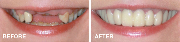 snap-on-smile-san-francisco-cosmetic-dentistry