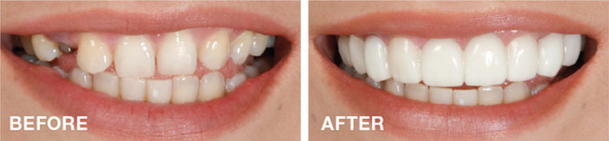 snap-on-smile-zirconia-implant-provisional-mina-levi-dds-cosmetic-dentistry
