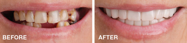snap-on-smile-aesthetic-smile-cosmetic-dentistry-san-francisco-mina-levi-dds