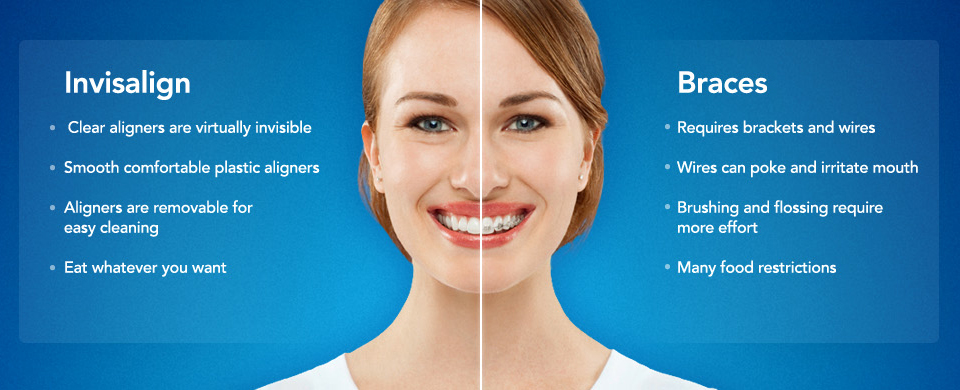 Invisalign-Braces-Dentist-San-Francisco-Mina-Levi-DDS.jpeg