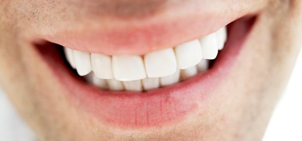 cosmetic-dentistry-snap-on-smile-veneers-invisalign