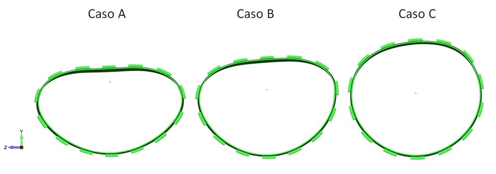 Amostra de Casos 51: Comparação entre deformadas com variação da folga – Escala de 50x