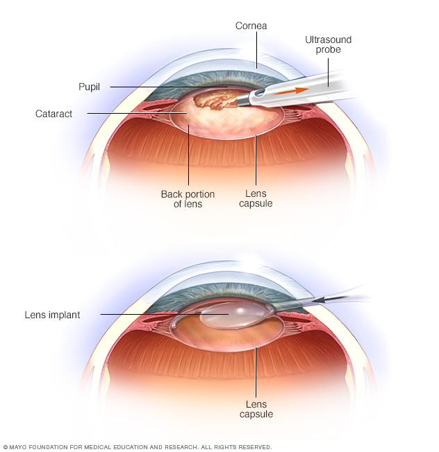 cataract-surgery.jpg