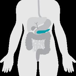 Enfermedades del páncreas - ・Pancreatitis aguda・Pancreatitis crónica・Fibrosis quística en adultos・Carcinoma ampular・Cáncer de páncreas・Quistes del páncreas・Islotes de células cancerosas