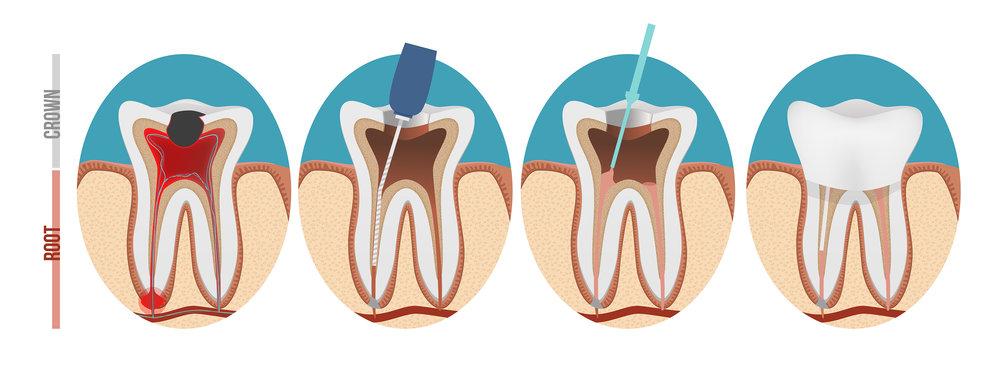 abbey-dental-care-root-filling.jpg