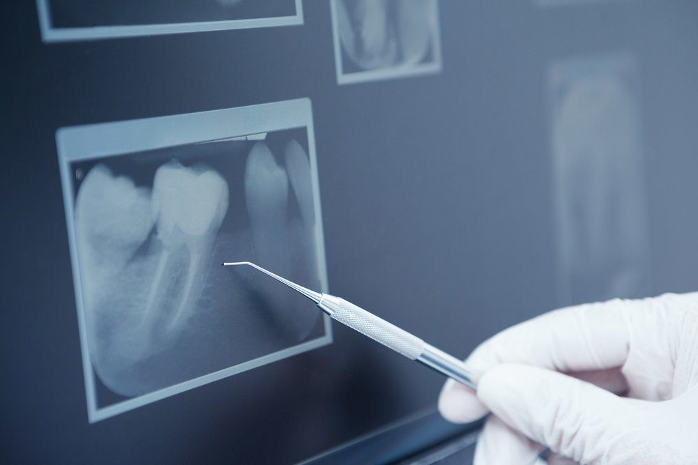 X-rays included - Benefit from three dimensional CT scans used to assist with removal of wisdom teeth and implantology.