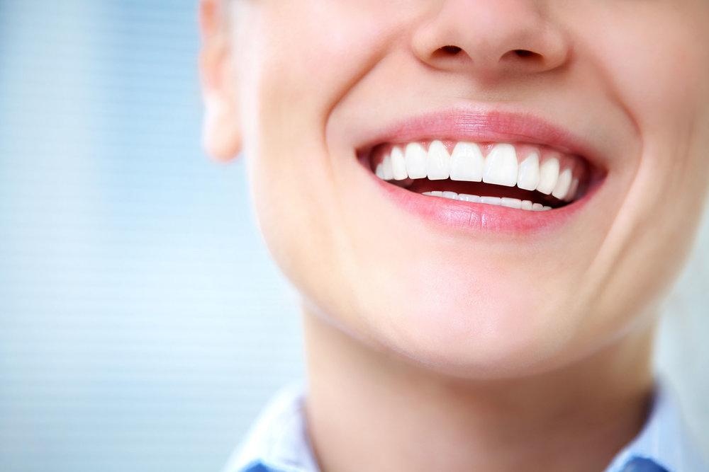 abbey-dental-care-implants.jpg