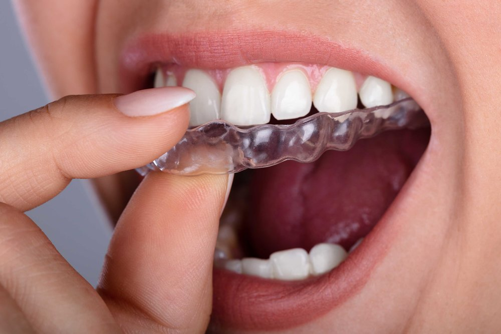 Invisalign-Provider-in-Minster-Thanet-Kent.jpg