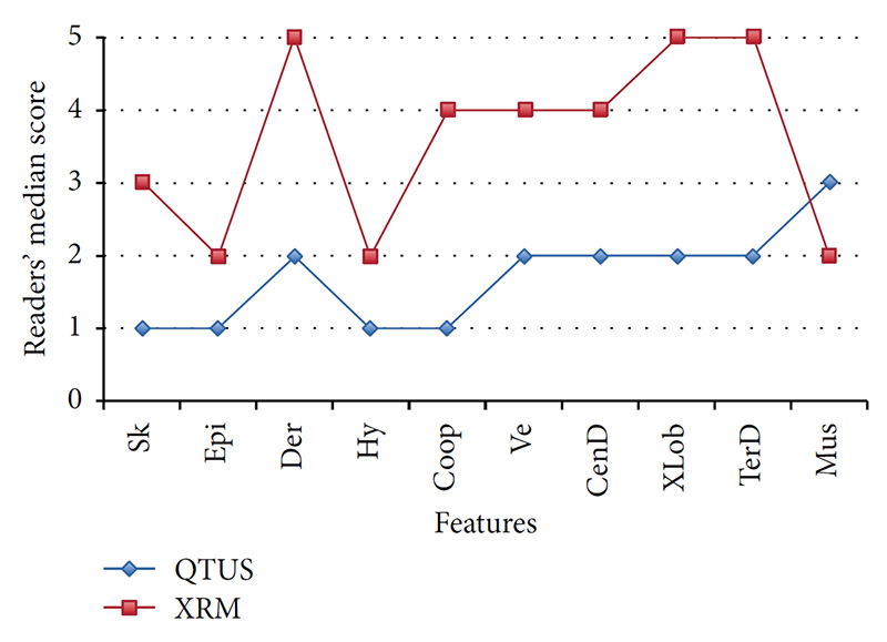 Using visual grading analysis readers scored the image quality on QT Ultrasound as better than on X-ray mammography in up to 90% of breasts for specific tissues. QT Ultrasound provides accurate anatomic information and high tissue specificity using speed of sound information.  Readers' median image quality score by modality; 1 = excellent; 5 = poor.