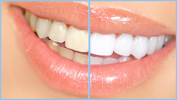 BEFORE & AFTER - Teeth Whitening @ CryoMyst Philadelphia