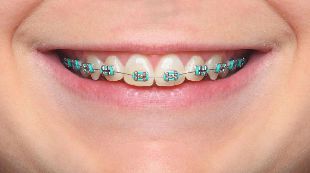 braces-color-wheel-braces-colors.jpg