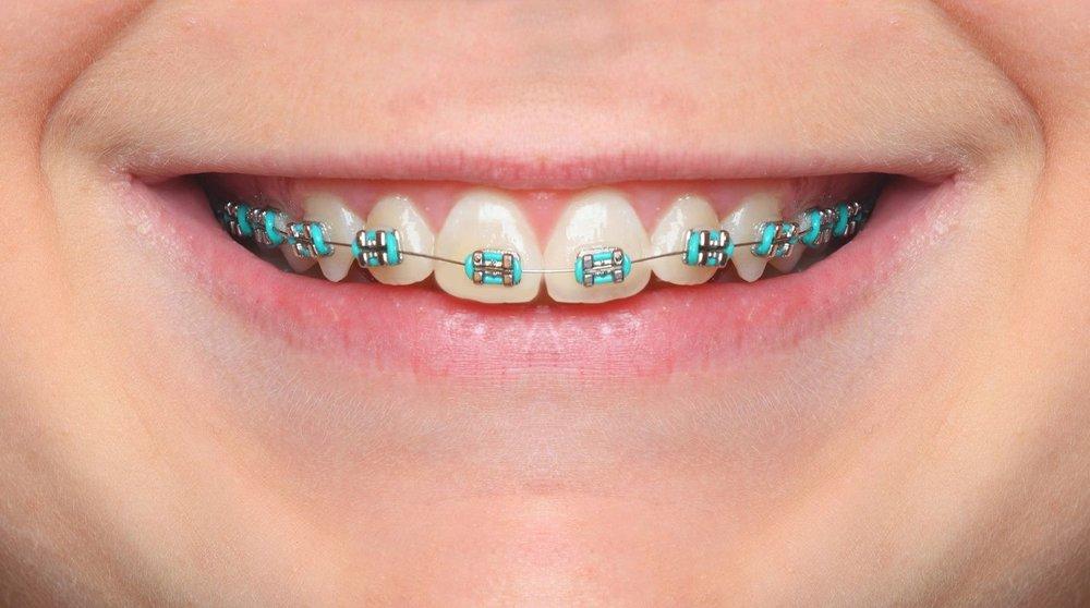 braces-color-wheel-braces-colors.jpg