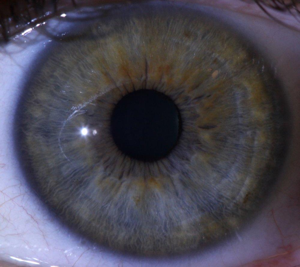 Left Eye Final Vaughn Lawrence