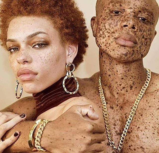 True Beauty Lives Forever❤️✨ #freckles #beauty #skincare #redbone #flawlessla
