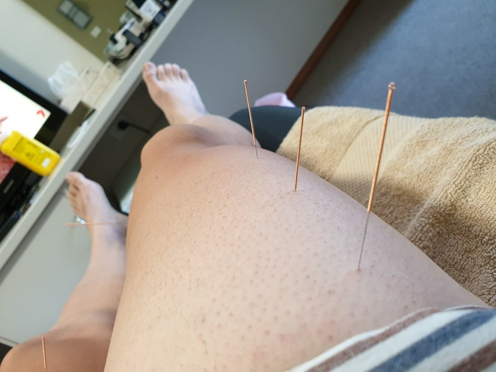 Of course you wanted a shot of my shaved legs (only done for big events, I promise!)… Complete with big long needles jammed in them!!