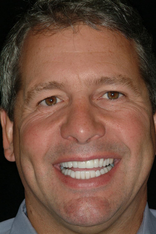 Orthodontics - Enhancement