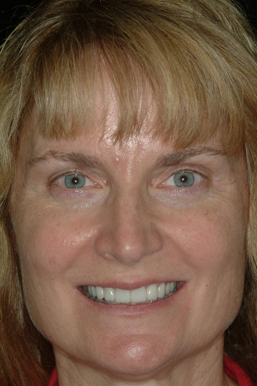 Instant - Orthodontics
