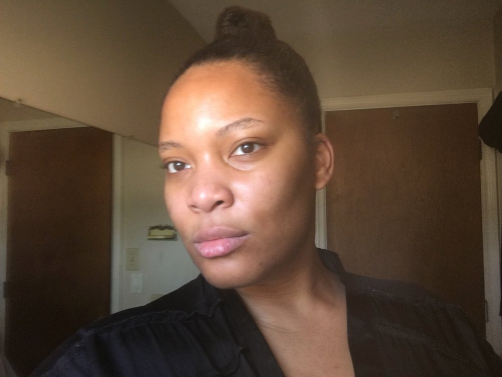 1.5 months after new skin routine.
