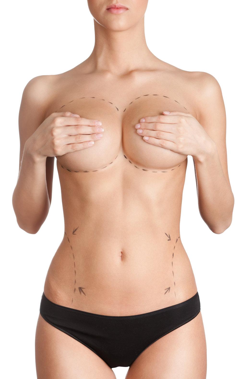 Mamoplastia de Aumento - es un procedimiento quirúrgico que busca mejorar el tamaño y la forma de los senos.