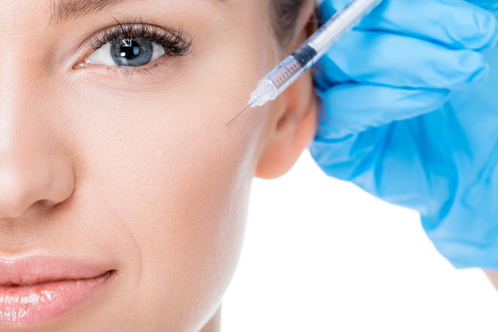 Botox - notables resultados reales, sin cirugía ni tiempo de recuperación