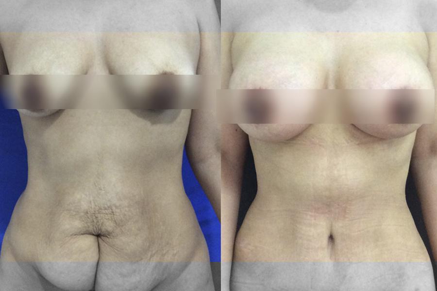 Lipectomía, lipoescultura y mamoplastia de aumentos - Antes y después - Pacientes reales
