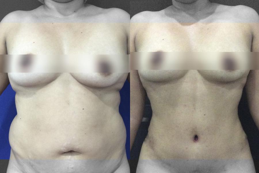 Lipectomía abdominal y lipoescultura - Antes y después - pacientes reales.