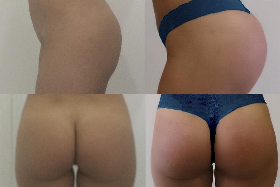 Antes y después - Pacientes reales.